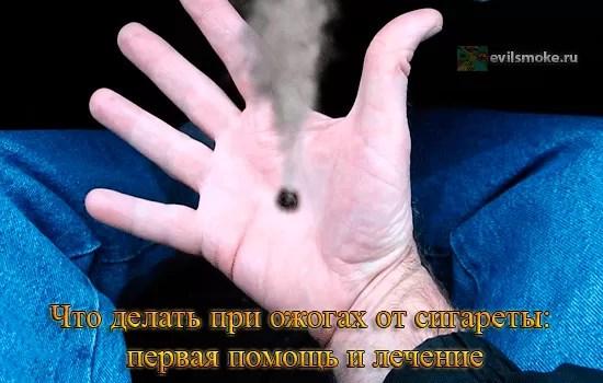 foto-ozhog-ot-sigaretyi