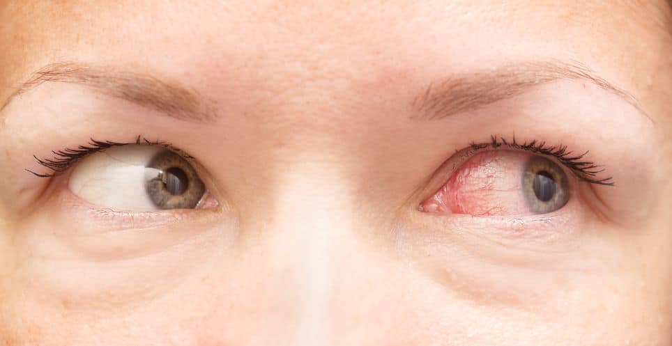 inflammations de l'oeil ophtalmologie nice