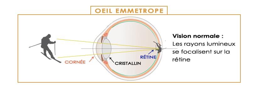 les défauts de la vision et la correction laser