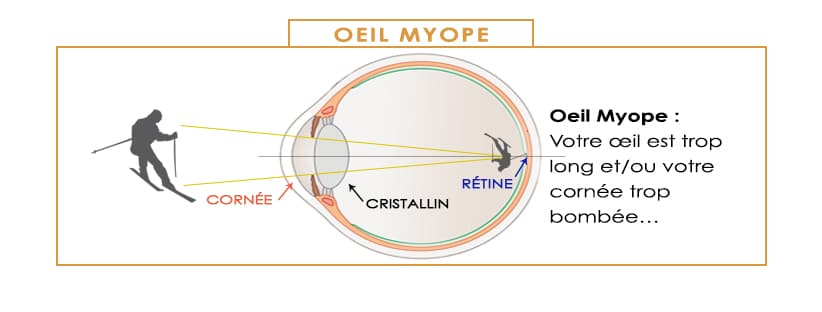 les défauts de la vision et la correction laser oeil myope la myopie