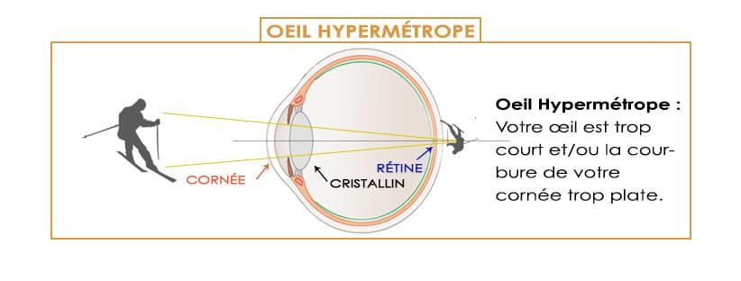 les défauts de la vision et la correction laser oeil hypermétrope hypermétropie