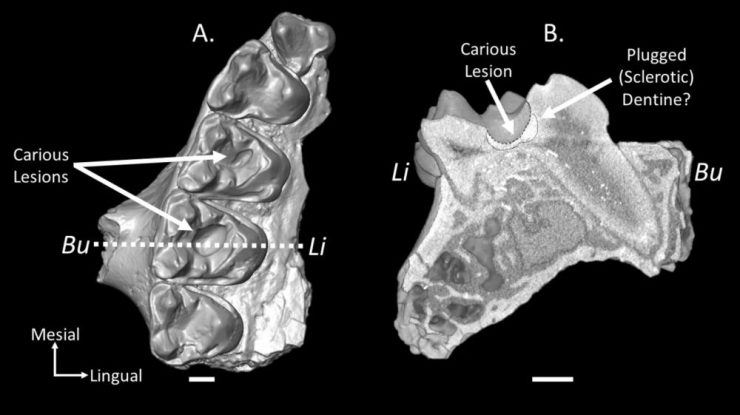 Реконструкция фрагмента правой верхней челюсти (A) с полостями в молярах и еще одна реконструкция среза через кариес (B). Предоставлено: Киган Р. Селиг и Мэри Т. Силкокс / Научные отчеты, 2021 г.