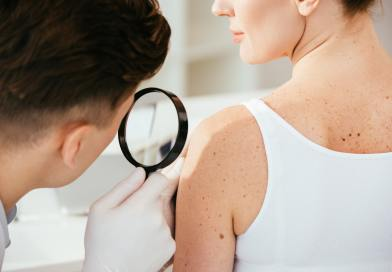 cropped view of dermatologist holding magnifying glass while examining patient with skin disease