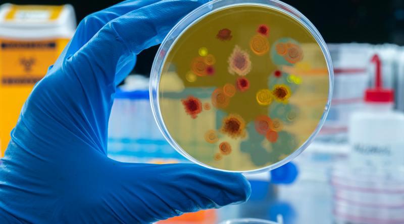 Scientist examines malaria virus on petri dish in laboratory, conceptual image