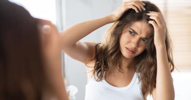 Unhappy Woman Looking At Hair Flakes Having Dandruff Problem Indoor