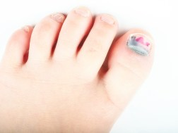 Injury to toenail