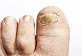 Thick toenail