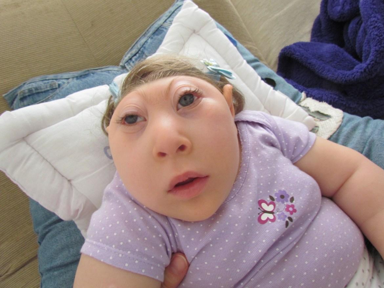 Anensefali gibi doğuştan gelen hastalıklar, bebeklere herhangi bir seçim hakkı bırakmamaktadır.