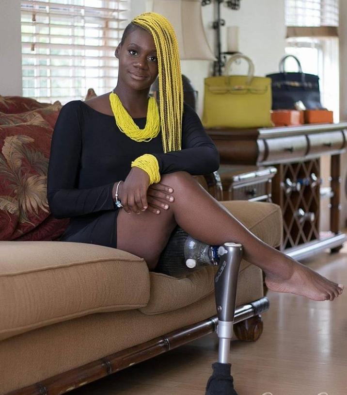 Loss Limb Awareness profile | Amputee talks Losing Limb