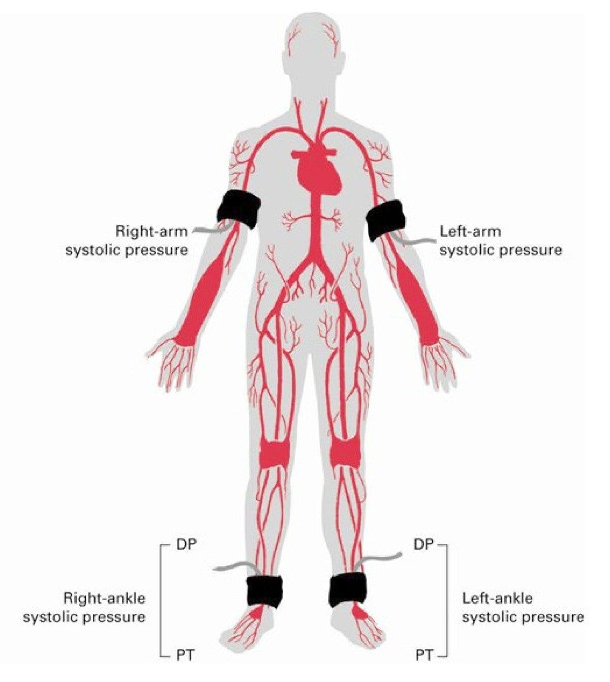 Ankle Brachial Index Worksheet