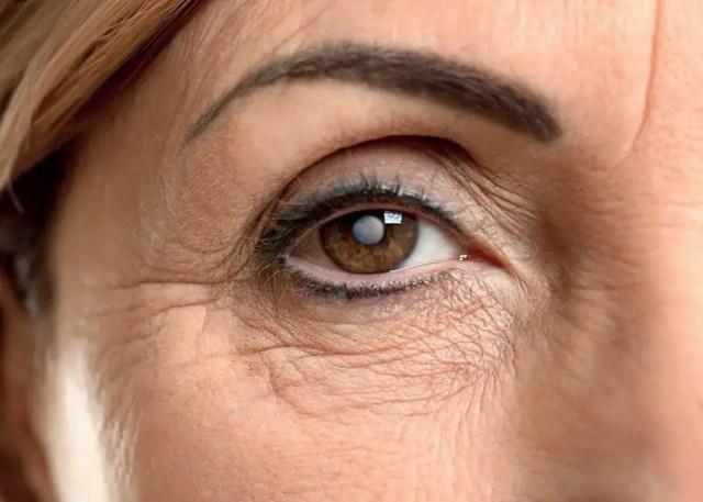 Las cataratas constituyen la primera causa de ceguera a nivel mundial, seguidas del glaucoma y de la degeneración macular