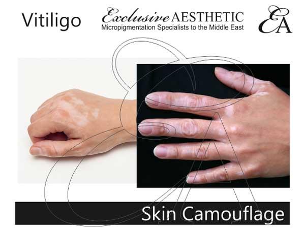 Vitiligo-Skin-Camouflage