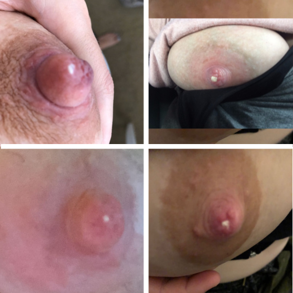 Milk Blister Photos: 4 Photos in a Collage of milk blisters (also known as blebs or nipple blisters)