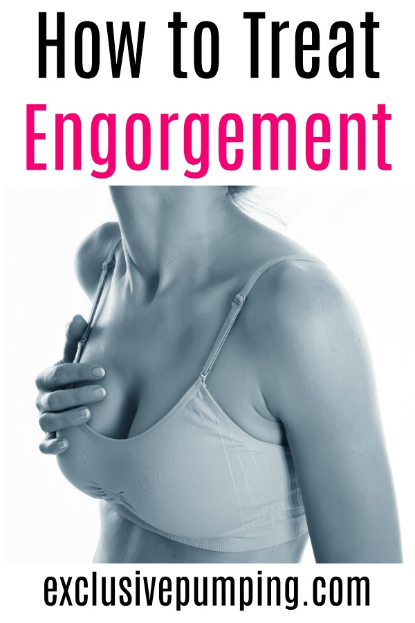 How to Treat Engorgement