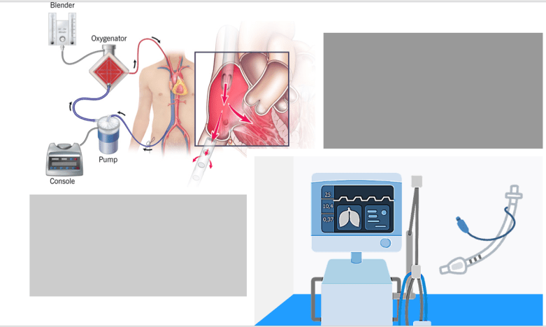 The role of Artificial Intelligence in Artificial Respiratory System