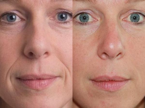 vörös foltok az arcon a biorevitalizáció után)