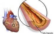 Plaque in Arteries