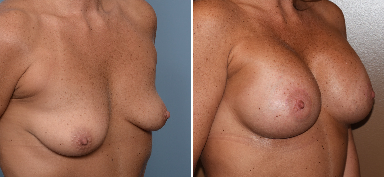 Deformed Breasts - Image 4 Fap-8243
