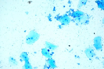 My own saliva stained with methylene blue. Personal buccal epithelial cells are visible as large pale blue cells with a dark staining nucleus. Numerous bacteria are visible either attached the cells or in other parts of the stained sample. 1000x