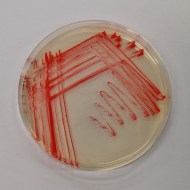 A close up image of the red living bacterial paint