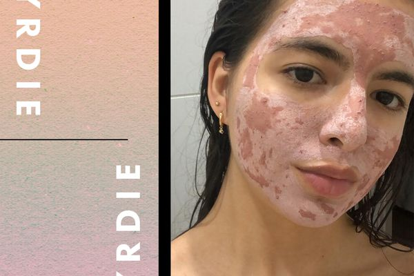 rosewater and acne