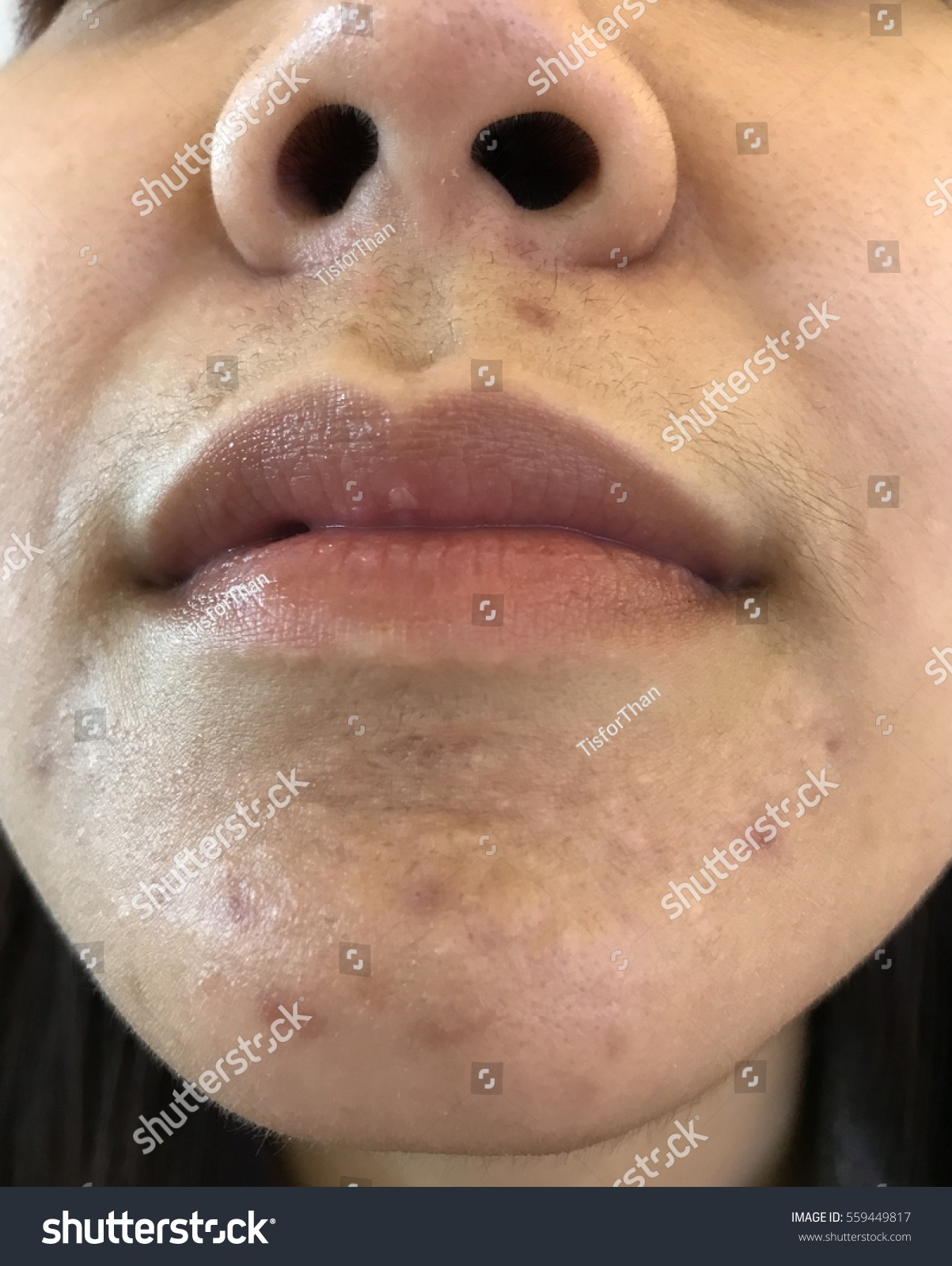 acne on lips