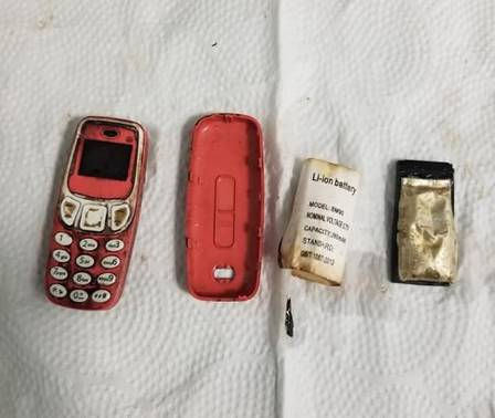 Man undergoes emergency procedure after swallowing old Nokia phone