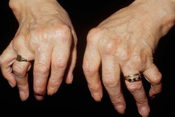 kemik Kanseri neden olur