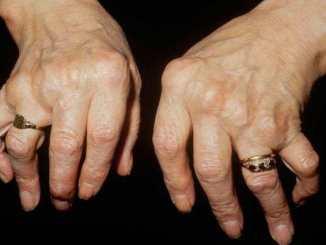 kemik Kanseri nedir ve Neden Olur