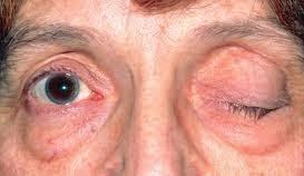 blefarospazm nedir ve neden olur?