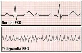 Taşikardi (Tachycardia) neden olur