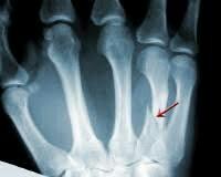 parmak kırılması neden olur