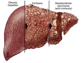 Hepatit e neden olur