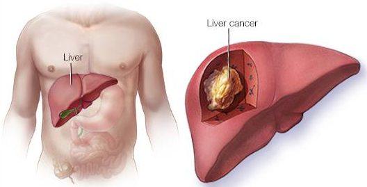 Karaciğer Kanseri Nedir
