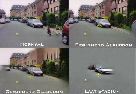 Gezichtsvelduitval bij glaucoom.