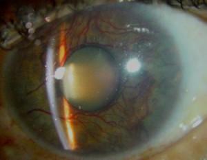 Rubeosis iridis: vorming van nieuwe bloedvaten in de iris.