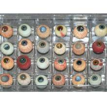 Diseased glass eyes made of blown glass for teaching