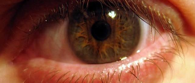 Innovative Treatment of Dry Eye