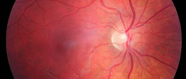 latest treatments of blindness