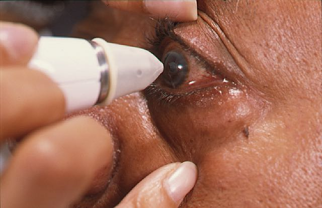 AIDS Patients In The Eye Clinic