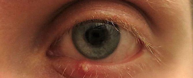 stye on eyelids