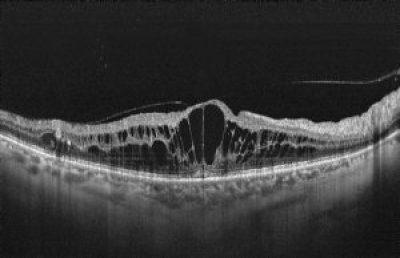OCT showing center-involving diabetic macular edema