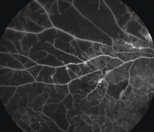 Nonperfusion from diabetic capillary dropout.