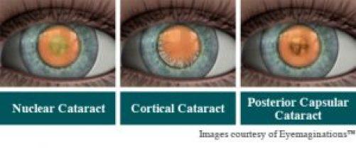Types of cataract