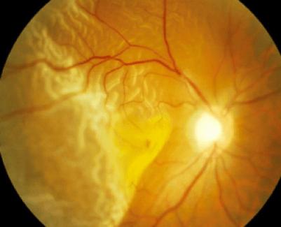 Macula off retinal detachment