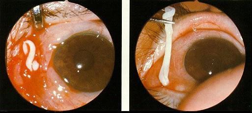 tapeworm larvae eye