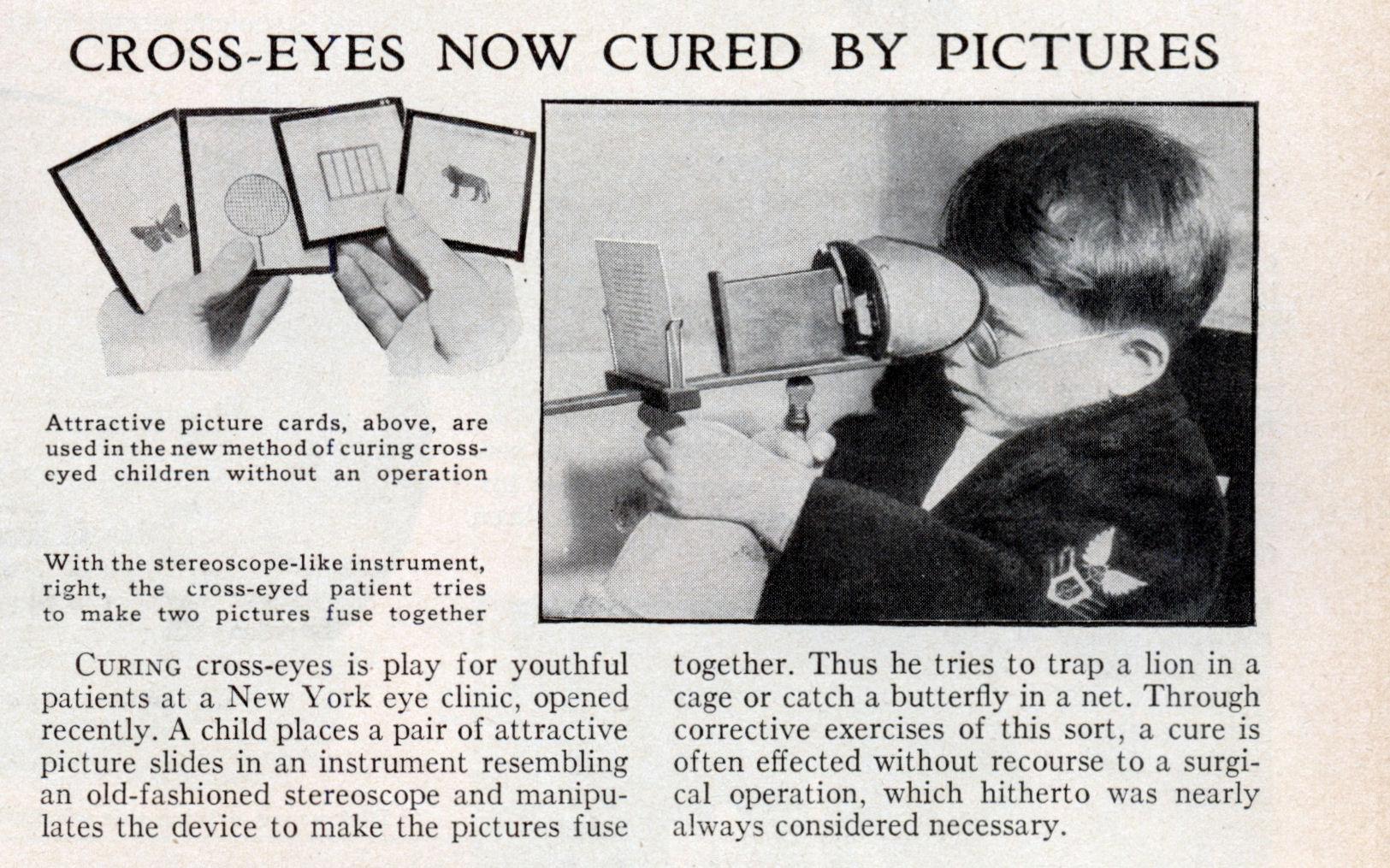 cross eye cure