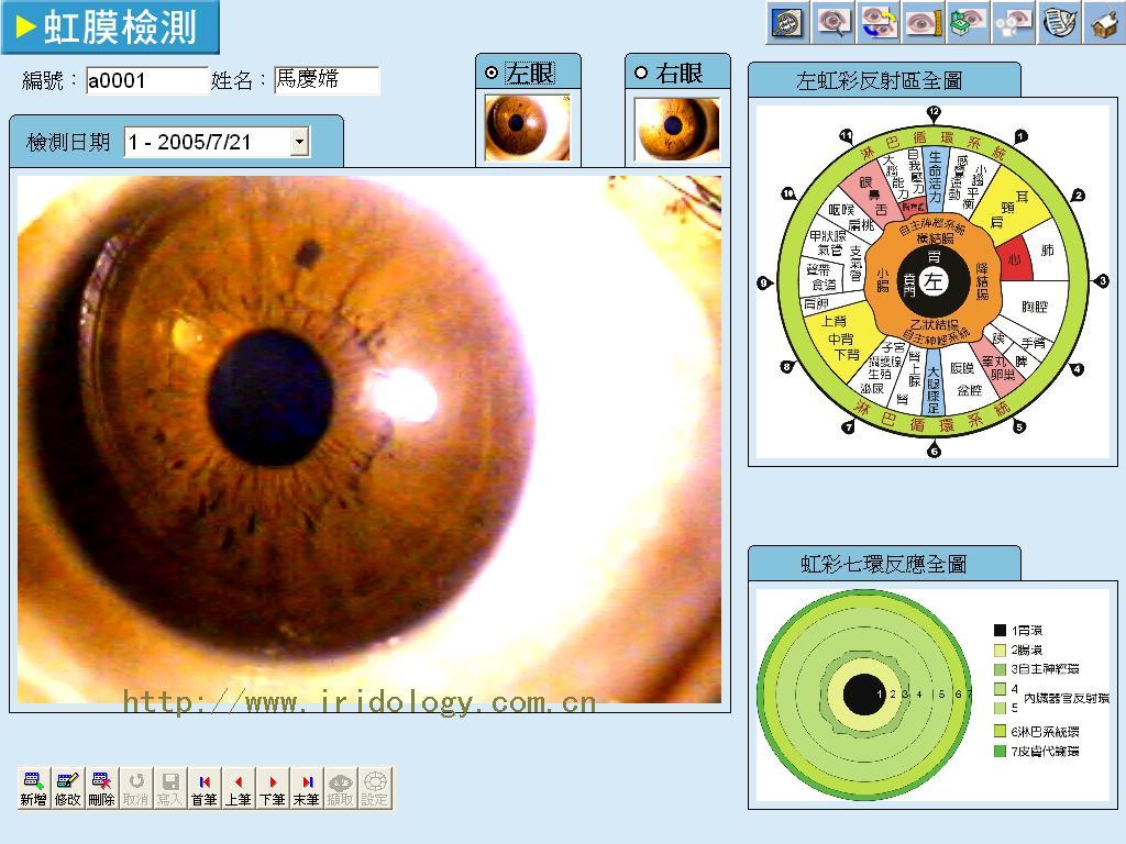 iridology tech