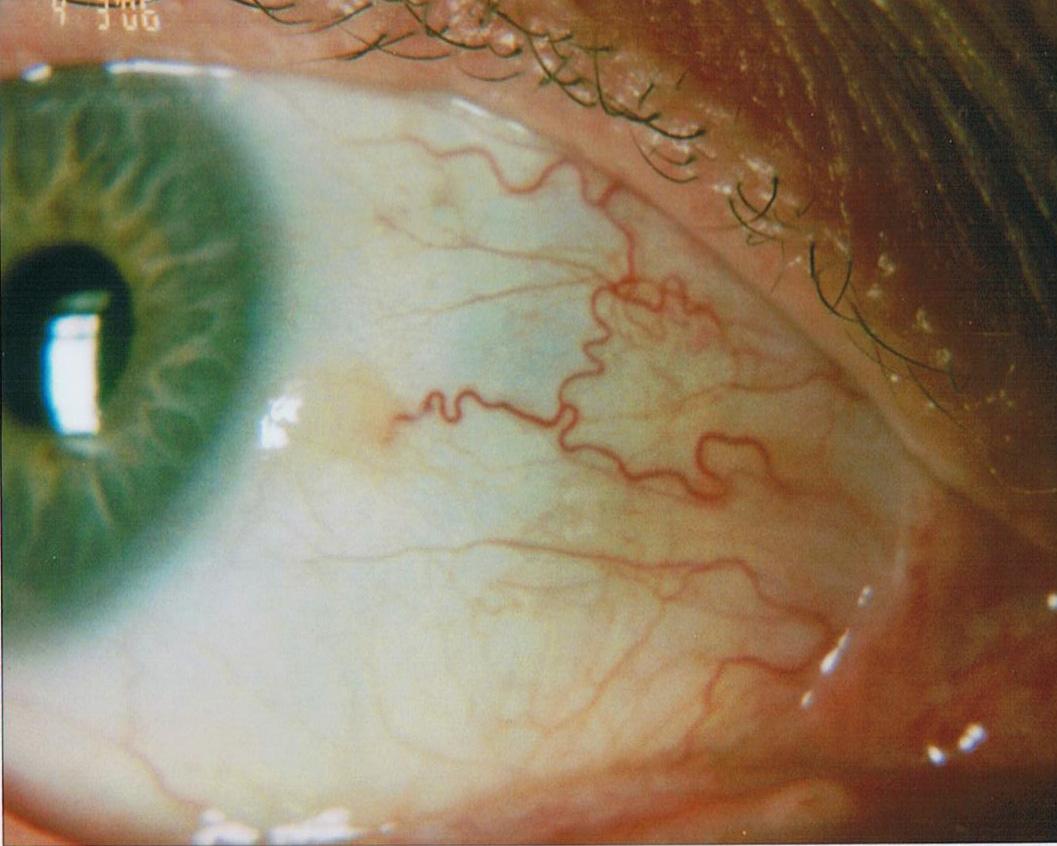 Sclera eye