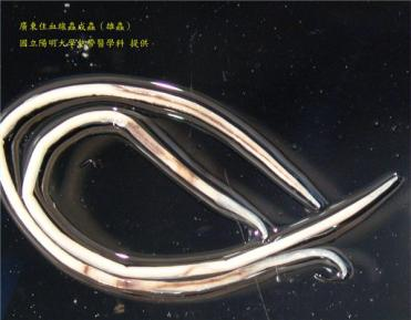 Photo courtesy of National Yang Ming University showing an adult male rat lungworm.
